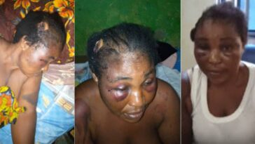 Woman Cries For Justice After Being Brutalised By Lawmaker Who Is Her Brother-In-Law [Video] 3