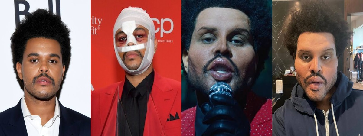 Did The Weeknd Get Plastic Surgery? Check Out His 'Creepy Look' In New Music Video 1