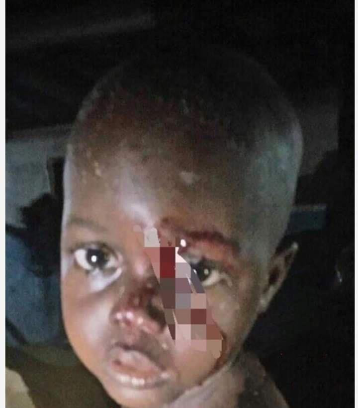 3-Year-Old Boy Rescued From Delta Well After Being Thrown In By Unknown Woman 1