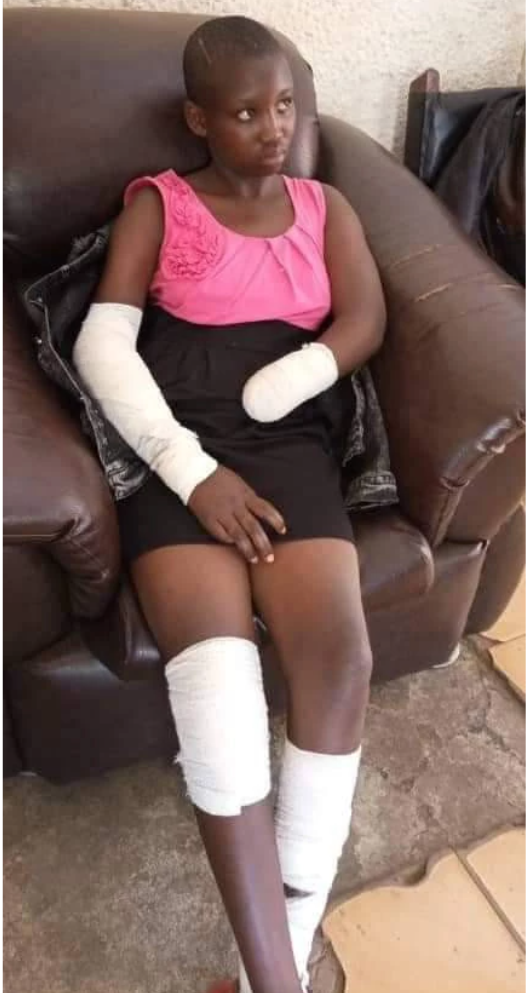 """""""He Ordered Me To Undress And I Refused"""" - Young Girl Narrates How Rapist Cut Off Her Hand 1"""