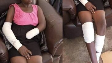 """He Ordered Me To Undress And I Refused"" - Young Girl Narrates How Rapist Cut Off Her Hand 11"