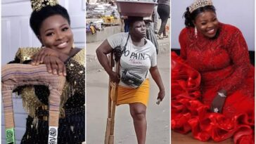 Lagos Withholds N25m Raised For Amputee Water Hawker After Detecting Lies In Her Story 3
