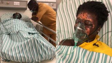 Man Bathes His Wife With Acid After Throwing Her Out Of His House [Photos/Video] 17