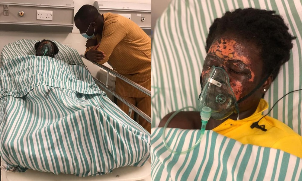Man Bathes His Wife With Acid After Throwing Her Out Of His House [Photos/Video] 1