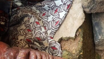 6 Things You Need To Know About Neglected Tropical Diseases In Nigeria 13