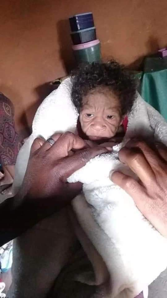 20-Year-Old Lady Gives Birth To Baby Girl That Looks Like 'An Old Woman' [Photos]