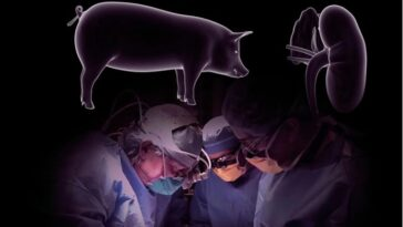 Surgeons Successfully Transplant Pig Kidney Into A Human Patient And It Worked