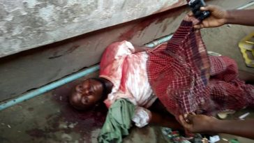 Over 20 People Killed During Elections In Rivers State, Disturbing Photos Of Some Victims 3