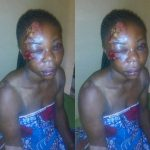 Nigerian Woman Brutalized By Her Husband Turns Down Justice, Says She Still Loves Him [Photos] 10
