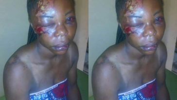 Nigerian Woman Brutalized By Her Husband Turns Down Justice, Says She Still Loves Him [Photos] 5