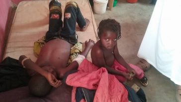 Young Boy Saves His Little Sister's Life Despite Being Shot By Herdsmen During Attack [Photos] 1