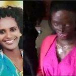 Woman Left Blind & Disfigured After Husband Poured Acid On Her Because She Asked For Divorce [Photos] 9