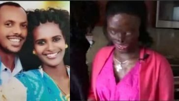 Woman Left Blind & Disfigured After Husband Poured Acid On Her Because She Asked For Divorce [Photos] 8